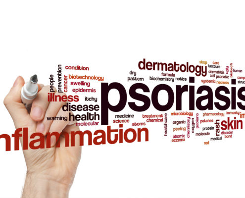 Treating Psoriasis Naturally