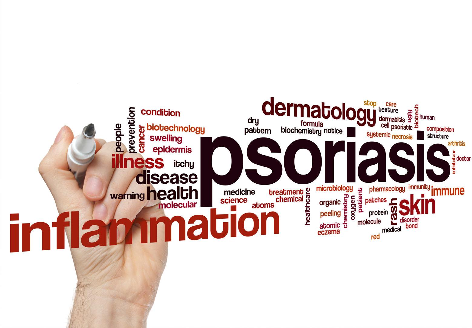 Treating Psoriasis Naturally